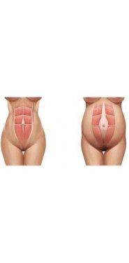 dos vientres de mujer